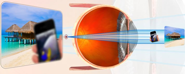 szemhúzás rövidlátás miatt 10 dioptria az a látomás