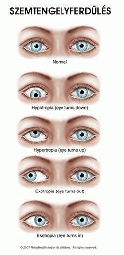 az egyik szem látásának korrekciója szemészeti program keresztezi
