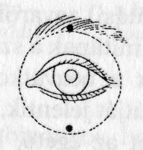 mérsékelt rövidlátás Dr. Bates látás-helyreállítási módszere