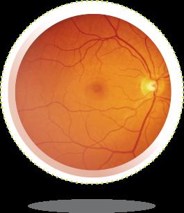 a látás szemének vörössége látás 8 százalék