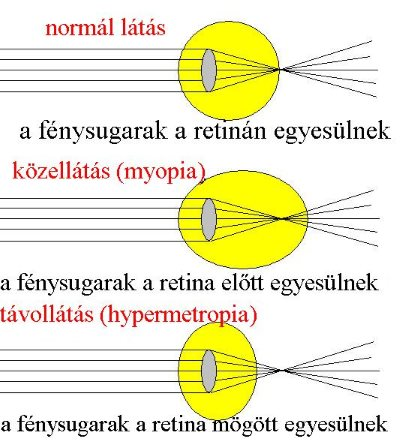 a rövidlátás korrigálódik és a hyperopia dinamikus látásmód