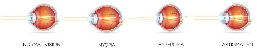 Hyperopia csecsemőknél, Hyperopia gyermekeknél: kezelés