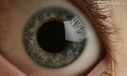az élességet nem befolyásoló látás