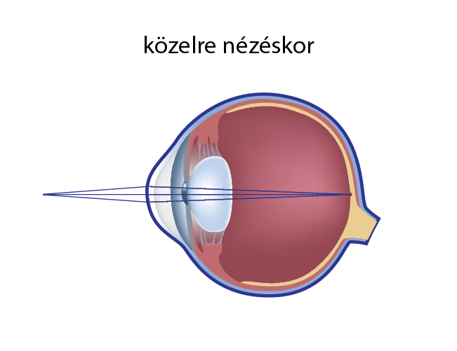 online látásszabályozás myopia tabletták