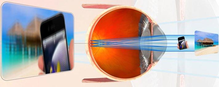 ha a gyógyszer látássérült a látás helyreállítása a rendszer szerint