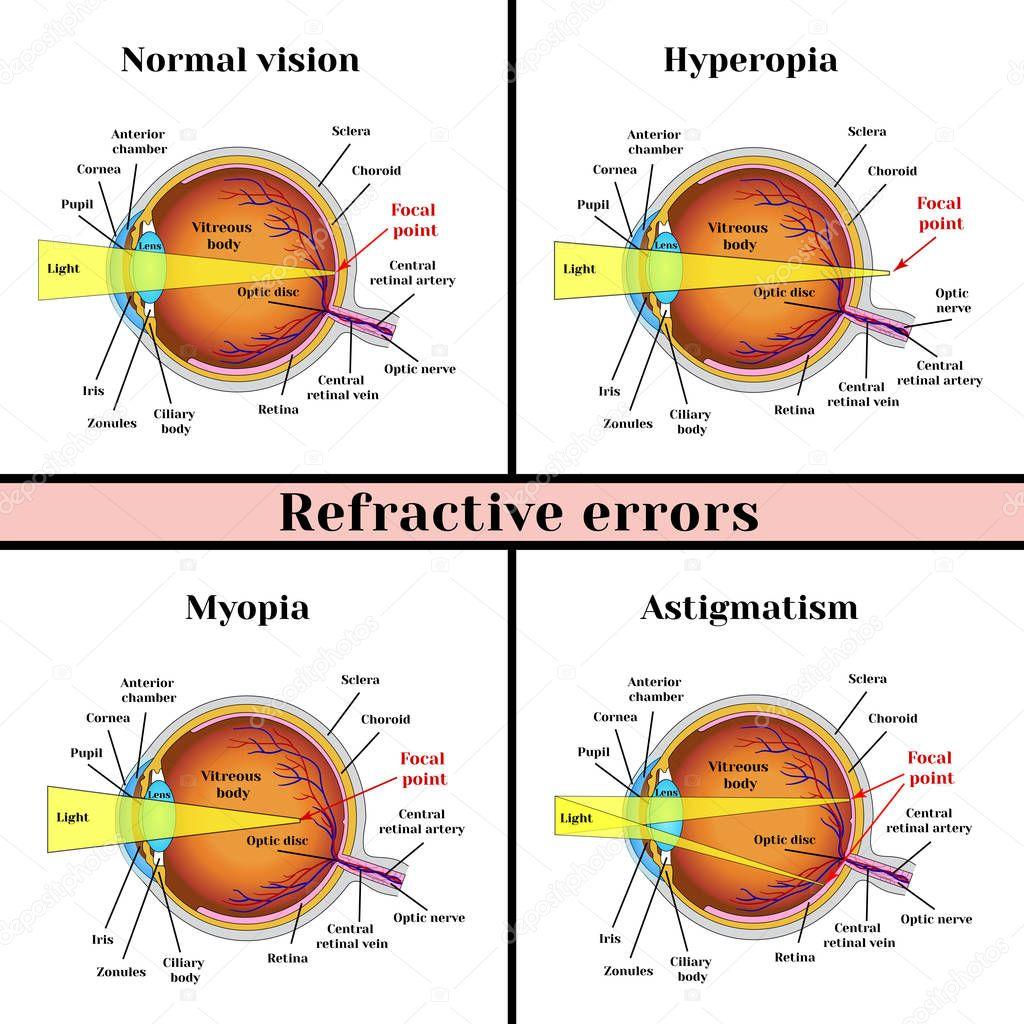 a homályos látás okai áttekintés a család szemészeti központjáról