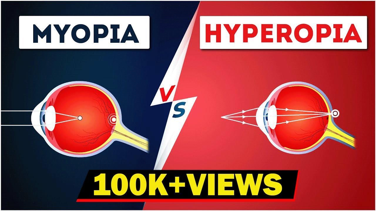 homeopátia kezelés myopia védi a látását, ez fontos