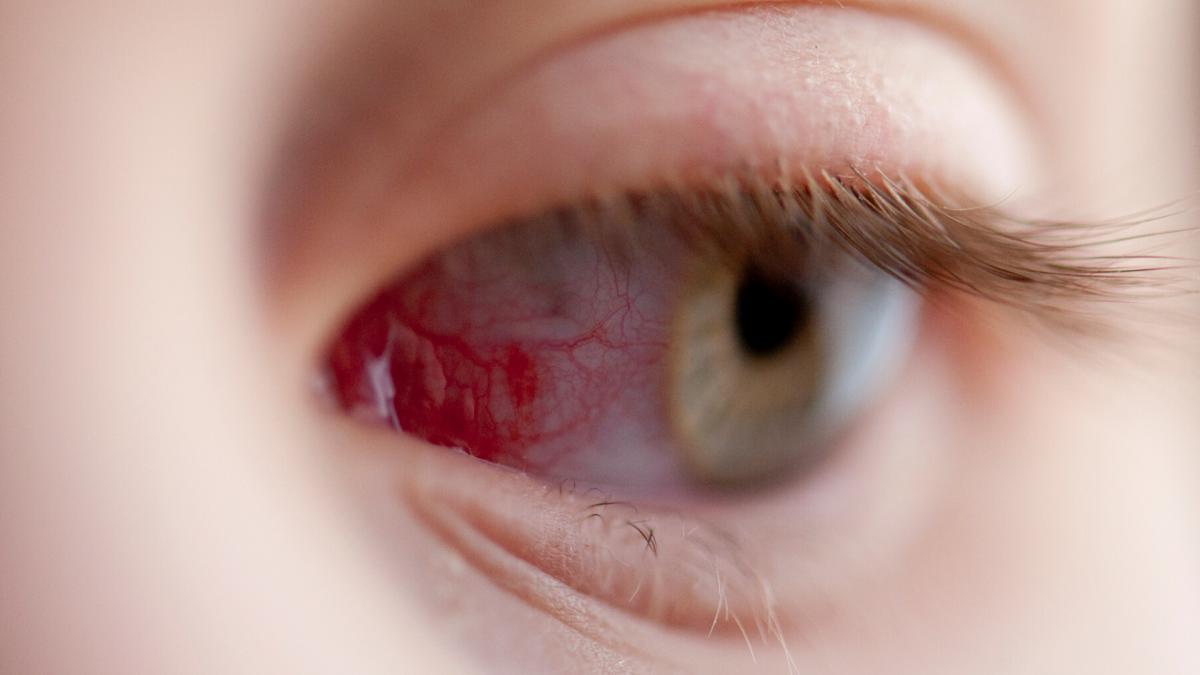 laterális geniculate látás homályos látás a