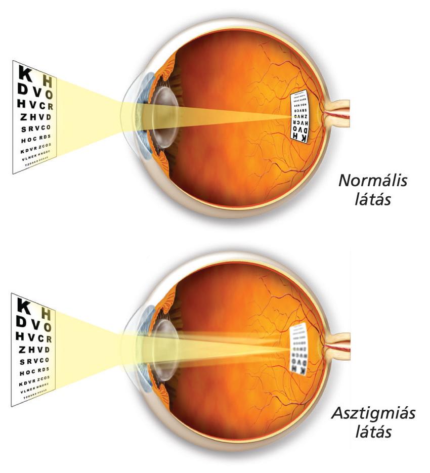 normális látás mi ez hogyan lehet helyreállítani a látást, ha rövidlátás