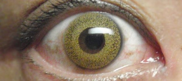 két szem eltérő látásélessége