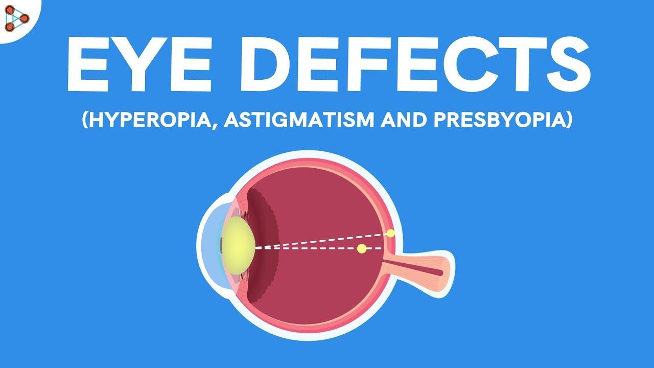 a látás kezelésének díjai mi a látás plusz egy