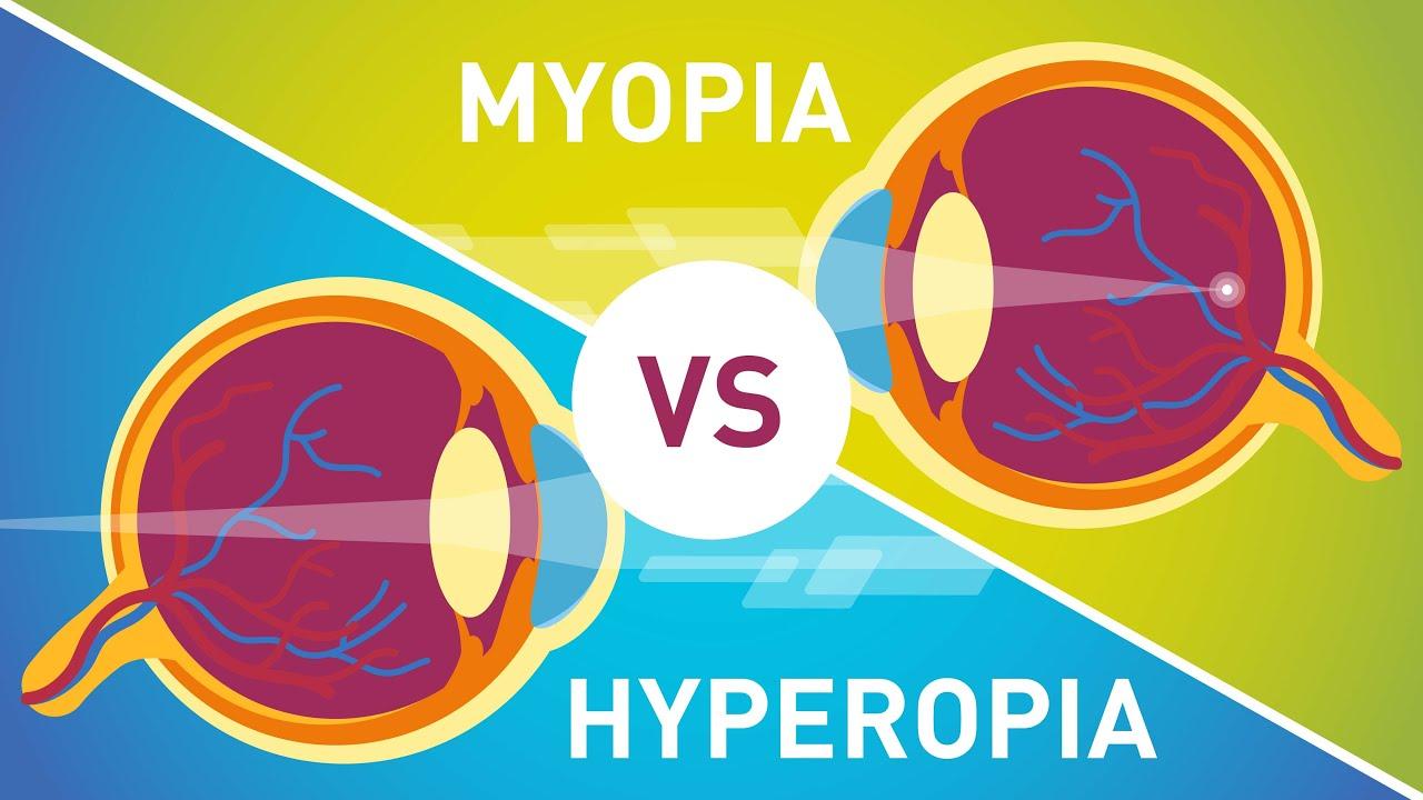 myopia kezelés myopia