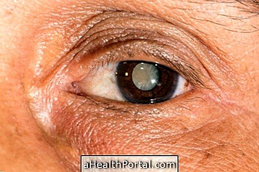hogyan lehet helyreállítani a látást szürkehályog után