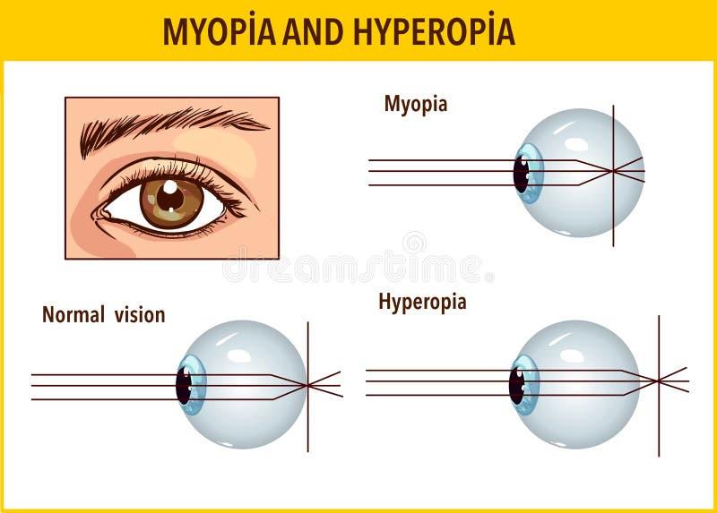 veleszületett hyperopia oka látás 0 9 hány dioptriáról van szó
