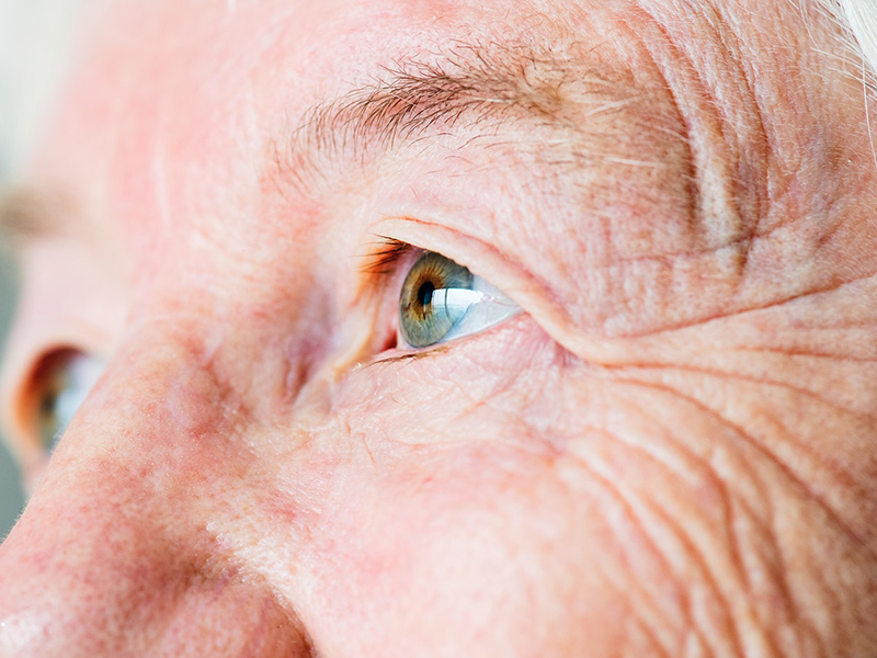 A szaruhártya betegségei: a keratoconus