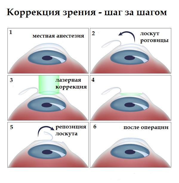 vitaminok a látásgyümölcshöz