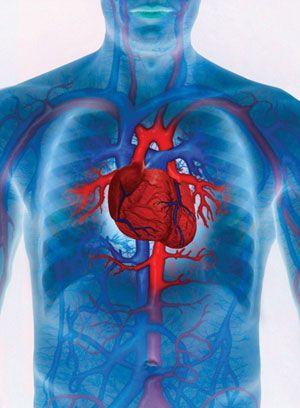 Hiperglikémia - magas vércukorszint