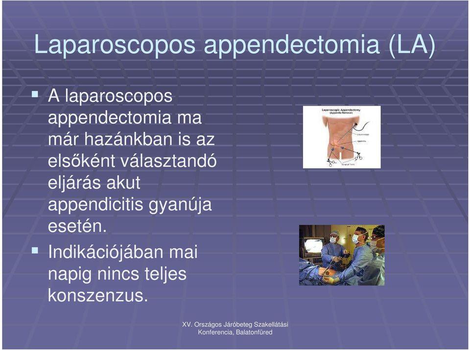 appendicitis gyanúja