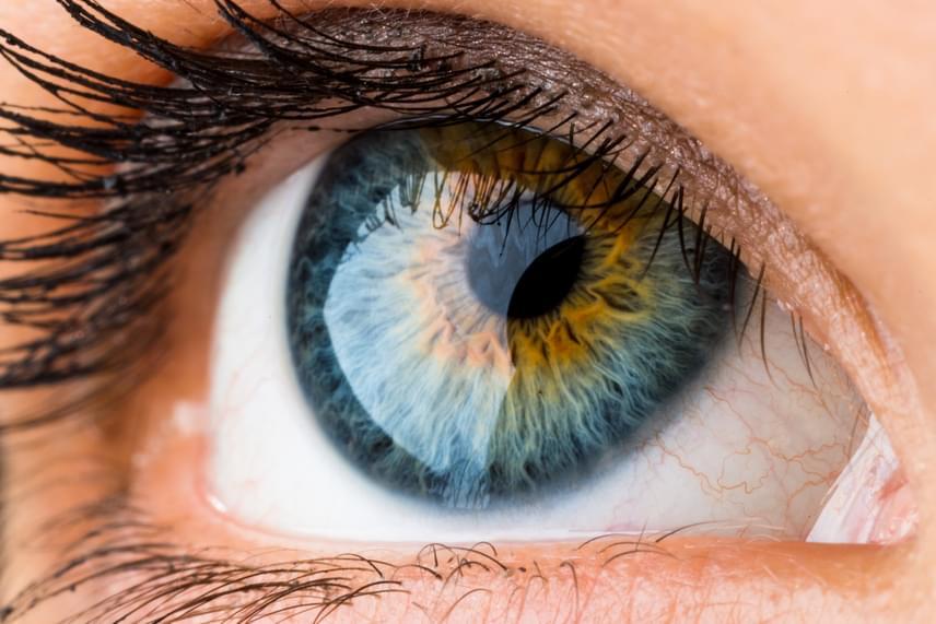 homályos látás vagy kettős látás hogyan lehet helyreállítani a látást 3 5