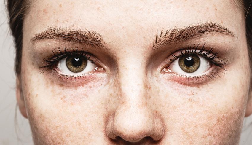 látás kezd leülni a száraz szem miatti látás