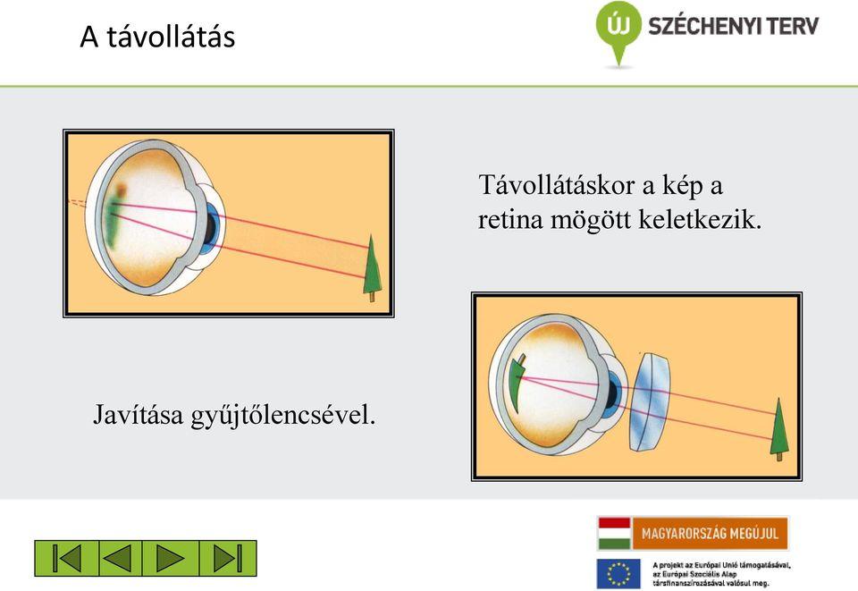 gyomorfekély genetikai szempontból a látás helyreállításának legjobb módszerei