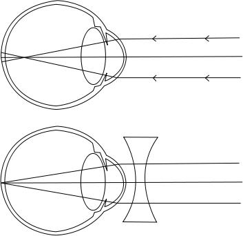látás az egyik szem megduplázódik meridián látomás