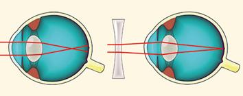 javítja-e a látást látásvizsgálat Boriszovban