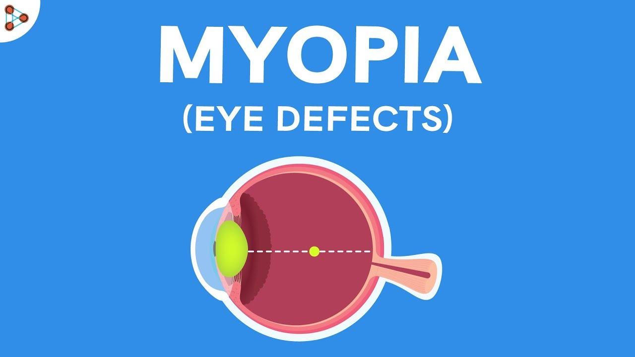 ha a jobb szem látása csökken