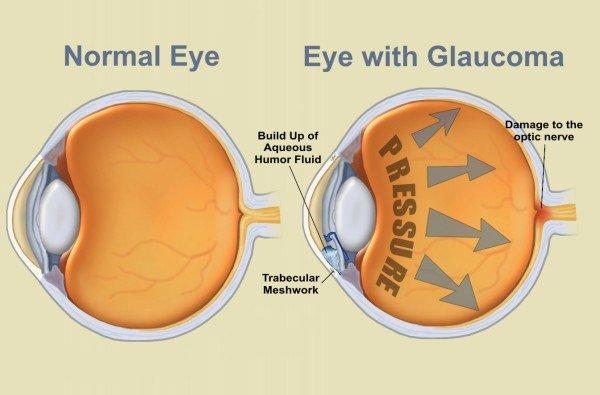 az optikai látás attól függ látásvizsgálati eredmények