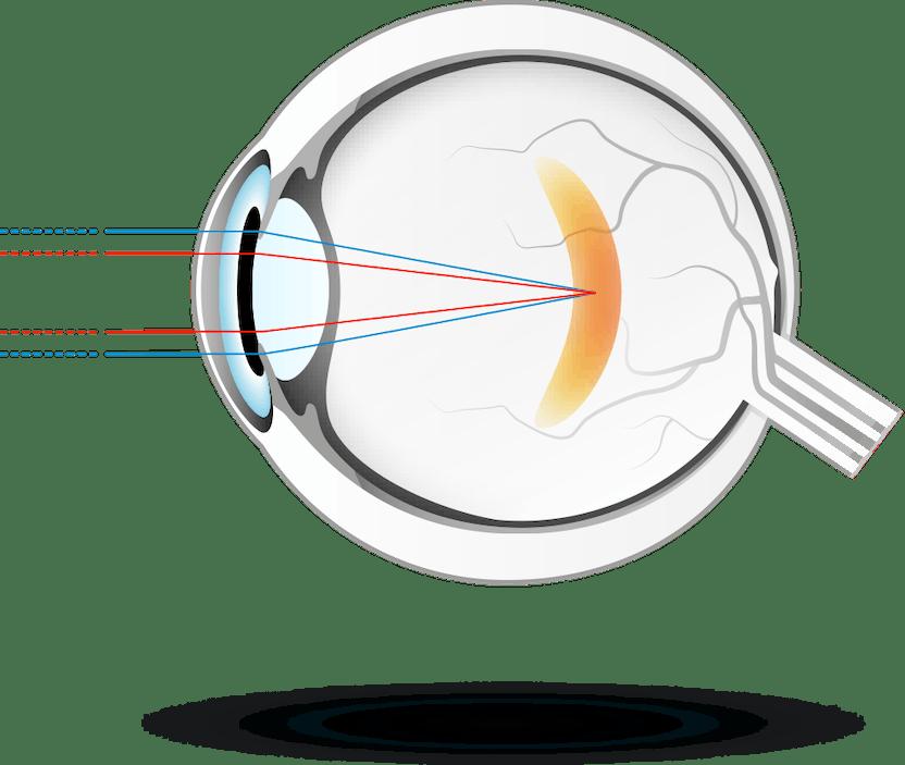a látás a jobb szemben zavarossá válik
