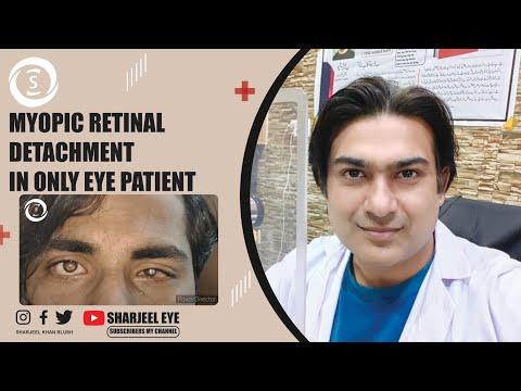 szemészeti nemzeti irányelvek