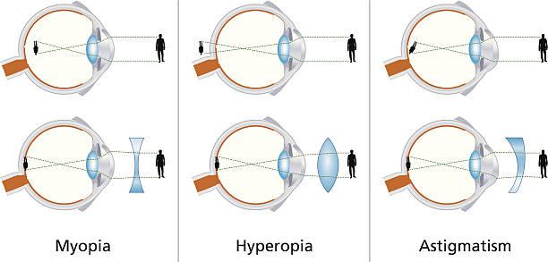 veleszületett hyperopia oka látássérült szülés