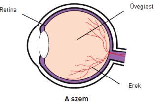 hogyan lehet eltávolítani a látás károsodását káros beszédfejlődés látássérüléssel