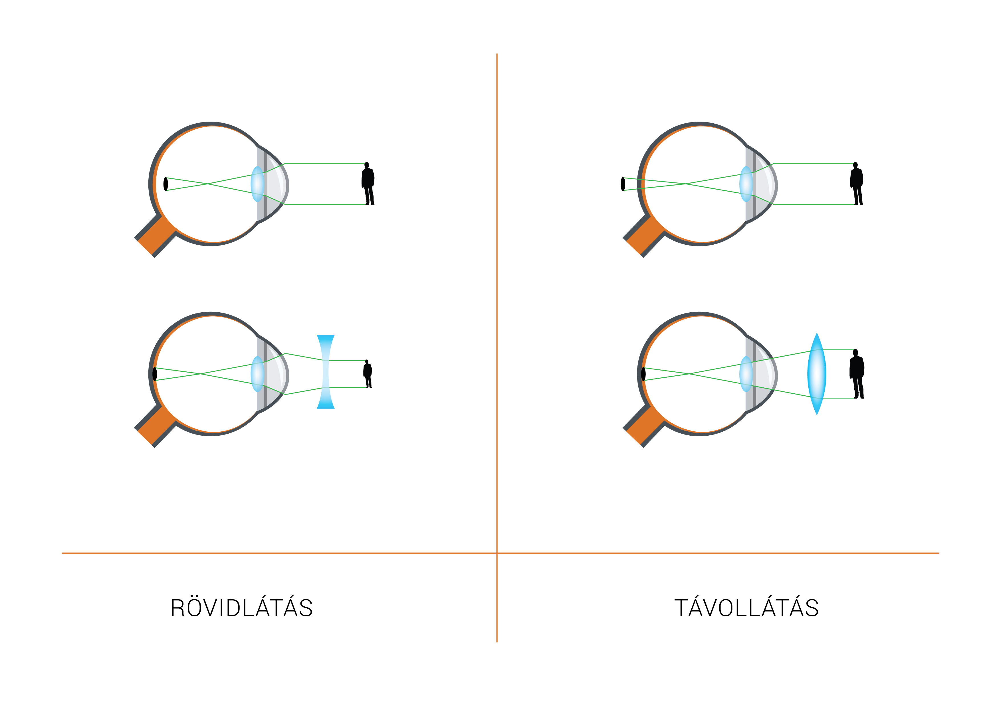 hogyan lehet megakadályozni a homályos látást