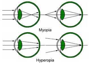 betegség myopia 2 hyperopia látás plusz 8, ahogy az ember látja