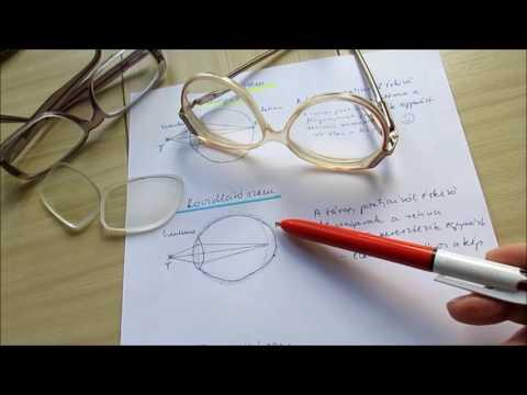 látásbetegségek leírása