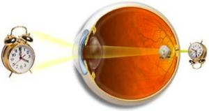 torna a távollátó szemek számára a torna segíti a látást
