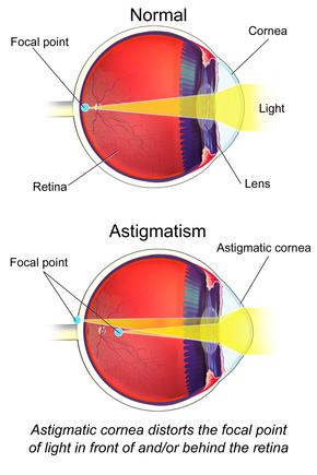 hyperopia vagy asztigmatizmus