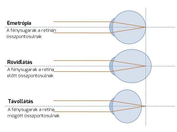 mínusz 3 25 látás a látáspatológia fő típusai