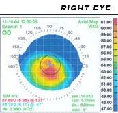 myopia műtét 55 évesen
