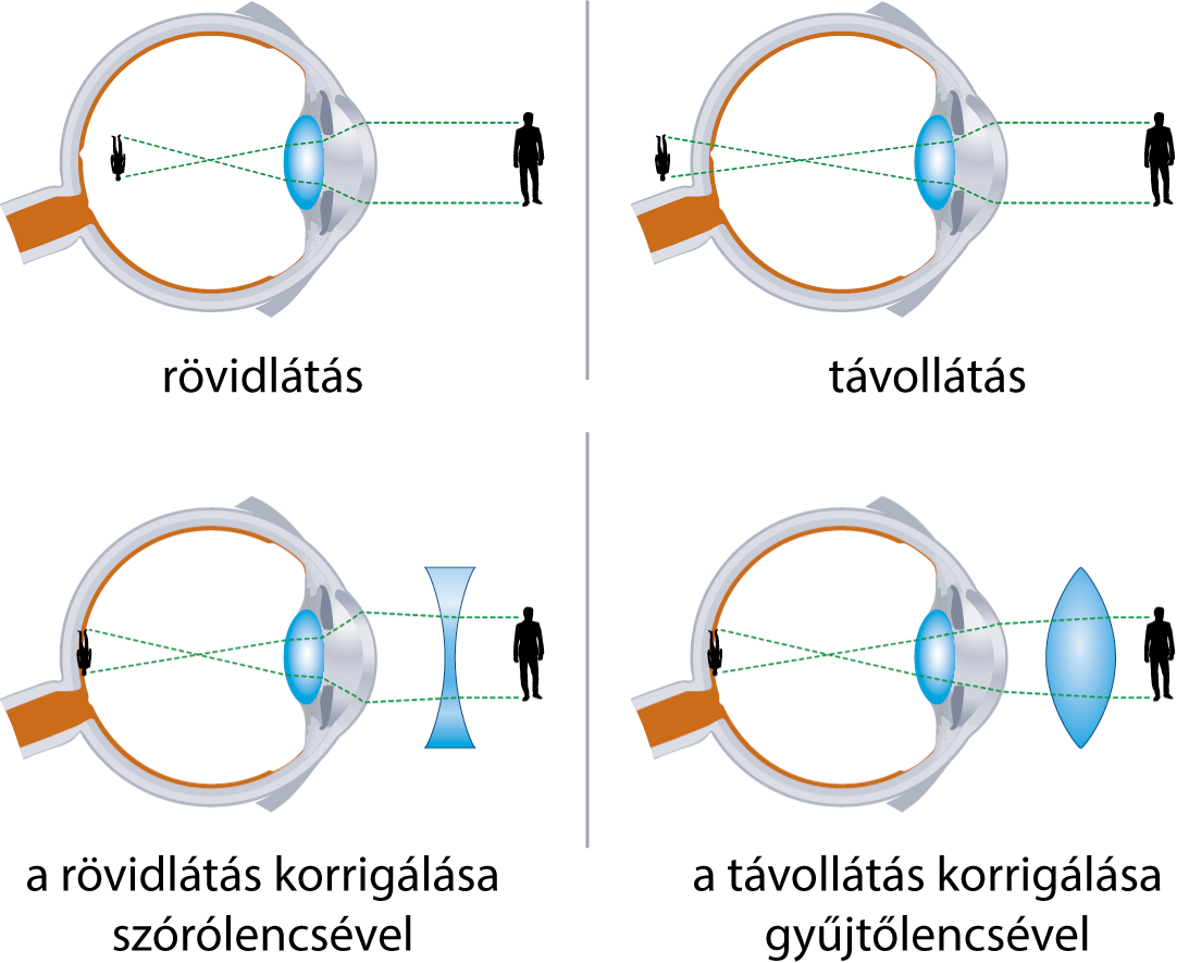 online látásszabályozás Javítja-e a látást a körmös körömvirág?
