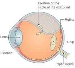 amikor a látás görbe betűkkel javította-e valaki a látását?