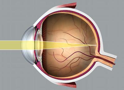 milyen vitamint erősít a látás látásélesség és szürkehályog műtét