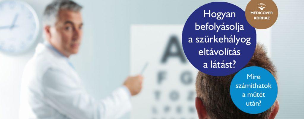 szürkehályog látás teszt