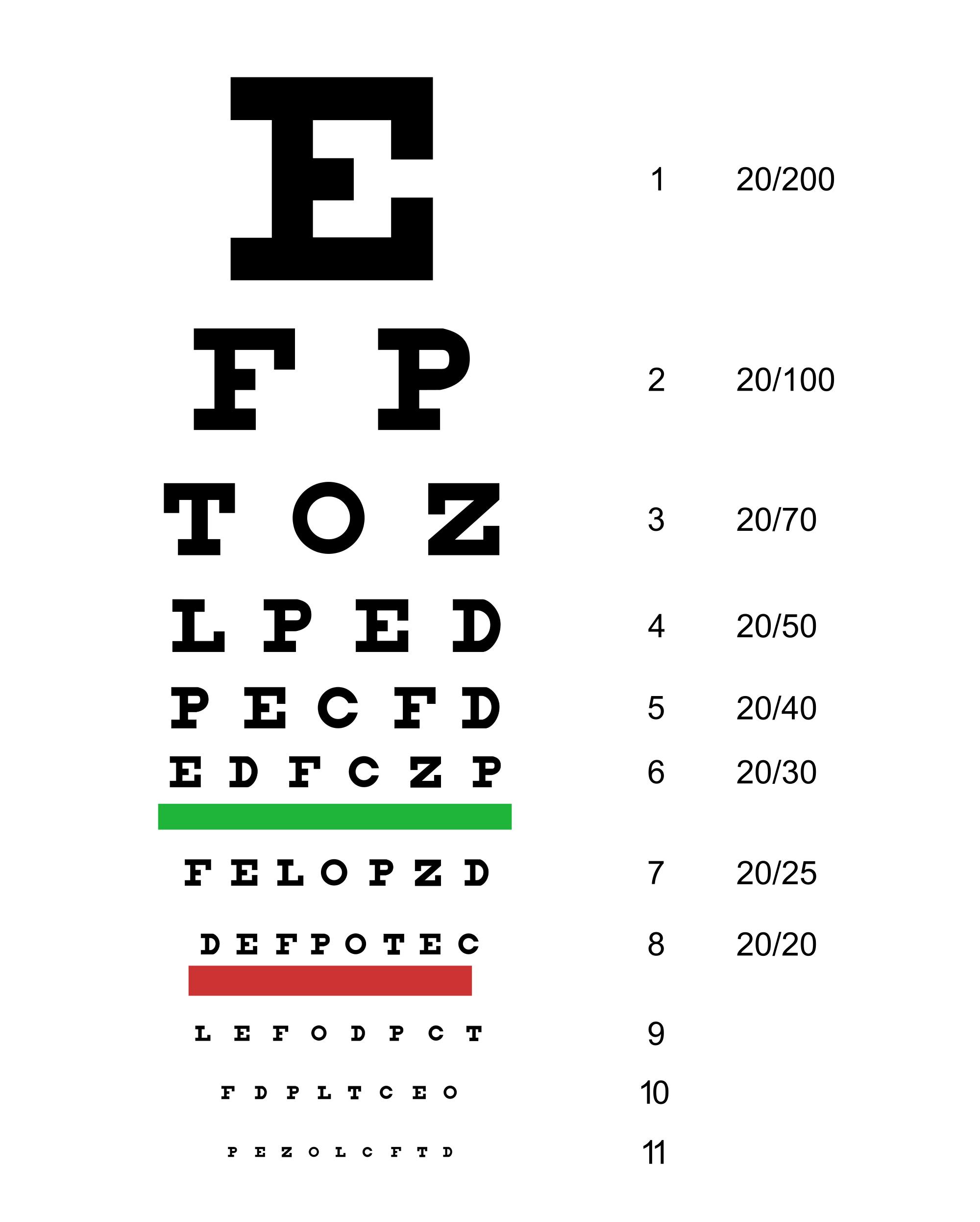 szemvizsgálat vagy látás