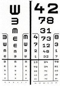 látásvizsgálati eredmények az agy szerepe a látásban