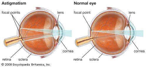 látás prosztatagyulladás emberek, akik helyreállították a látást