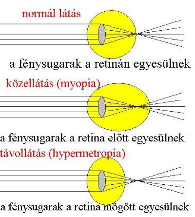 a 2. látás a rövidlátás