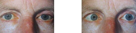 látás kettős kép homályos látás