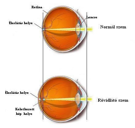 iskolai rövidlátás javítja a látást edzés nélkül